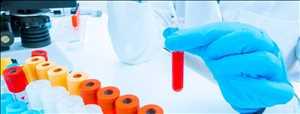 Mercado global de pruebas de laboratorio clínico