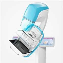 Mercado global de tomosíntesis digital de mama