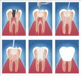 Tratamientos de endodoncia, Mercado de tratamientos de endodoncia, Mercado de tratamientos de endodoncia