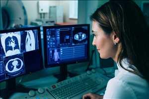 Mercado global de software de detección de cáncer de pulmón