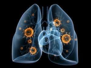Terapias para el cáncer de pulmón de células no pequeñas Mercado