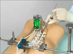 Mercado global de robots quirúrgicos espinales