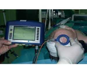 <abarcan clase = 'notranslate'> Dispositivos de control de la presión intracraneal </span> Mercado