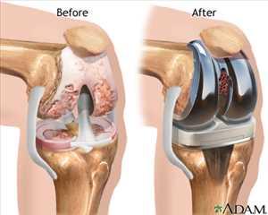 Implantes de rodilla Mercado