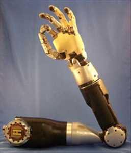 Prótesis robóticas Mercado