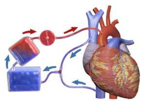 Mercado global de máquinas de pulmón y corazón artificial