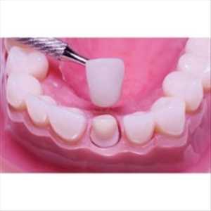 Mercado global de puentes y coronas dentales
